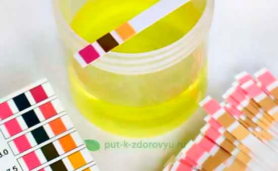 Тест-полоски для pH мочи.
