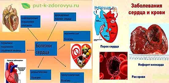Bolezni_krovi_i_serdtsa