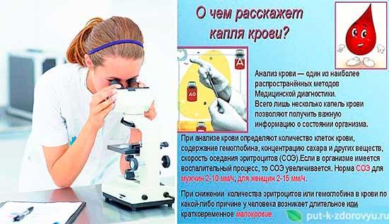 O_chyom_rasskazhet_kaplya_gemolimfyi
