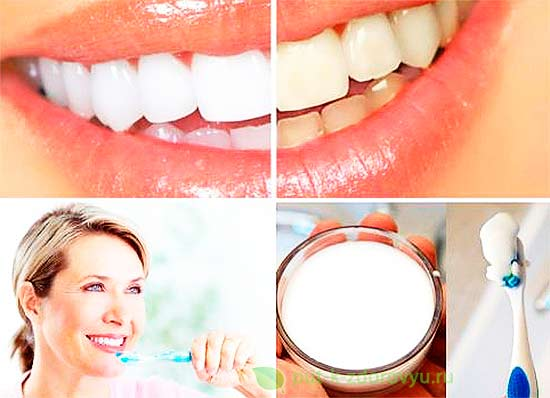 Сода для отбеливания зубов.