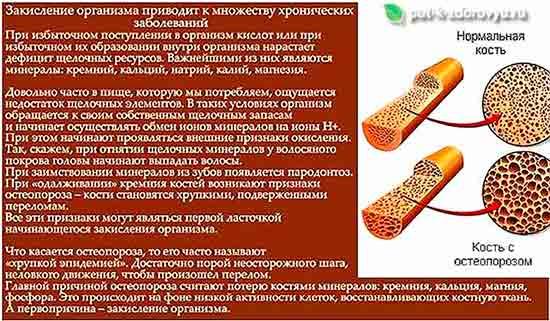 Bolezni_pri_zakislenii_organizma